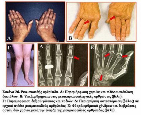 Αποτέλεσμα εικόνας για ρευματοειδής